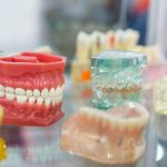 What Is Dental Implant Procedure in Turkey?
