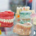 What Is Dental Implant Procedure in Turkey?