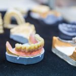 How Much Do All on 4 Dental Implants Cost in Turkey?