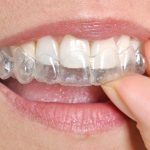 Dental Veneers or Invisalign: Which one is Better?