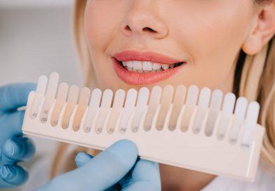 在土耳其伊斯坦布尔美白牙齿的费用是多少?