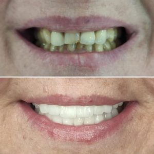Hollywood Smile Cost in Istanbul, Turkey- Smile Makeover Turkey