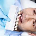 All on 4 and All on 6 Difference in Turkey: Dental Implants