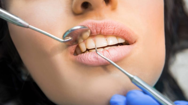 How Much is To Get Dental Bridges in Istanbul?