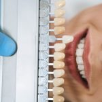 E-max Veneers Cost in Istanbul, Turkey: How Much Is It?