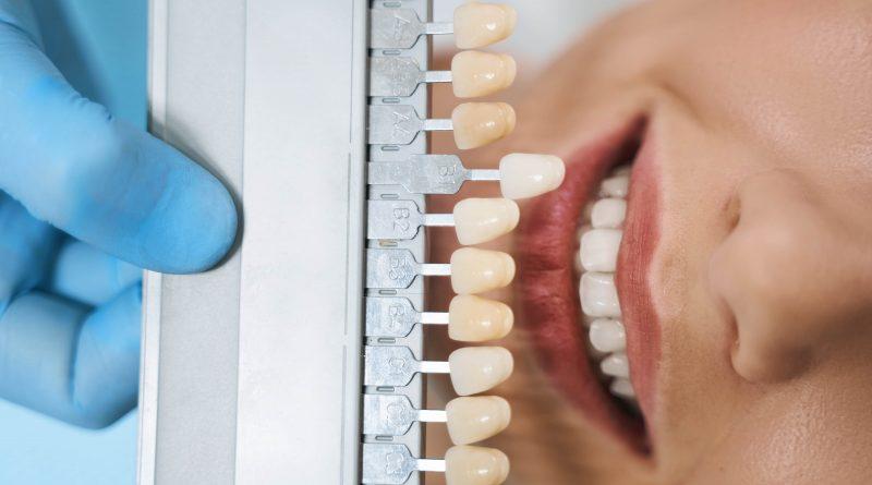 Dental Veneers, E-max Laminate Veneers, Empress Laminate Veneers, Empress E-max® Veneers in Istanbul