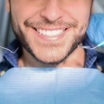 Laser Teeth Whitening Cost in Istanbul, Turkey- Smile Makeover