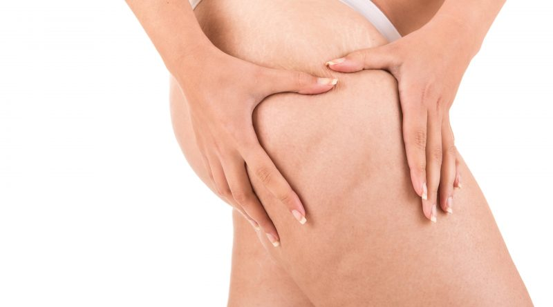 How Much Does it Cost to Get Liposuction in Turkey?