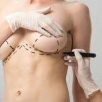 Low-Cost Breast Lift in Istanbul, Turkey: Procedure and Packages