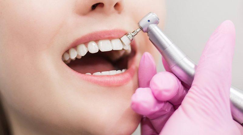 How and Where to Get Cheap Dental Veneers in Antalya, Turkey? Costs of Veneers