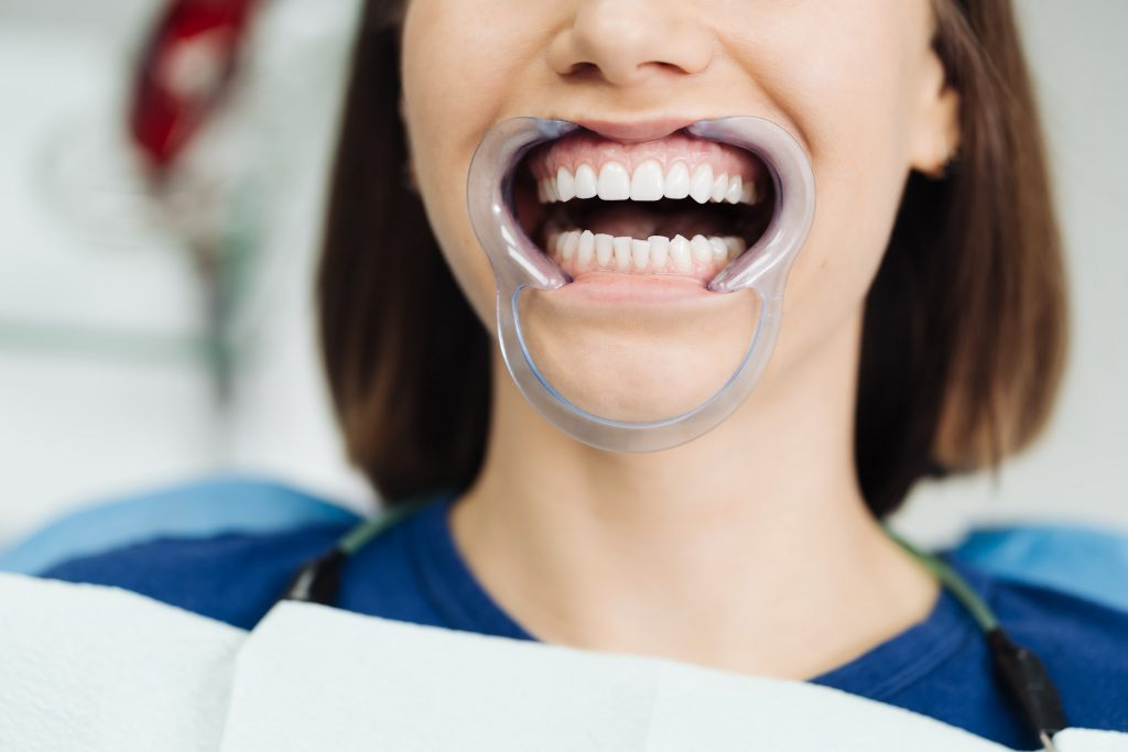 Porcelain vs Zirconia Crowns in Antalya- Which One is Better?